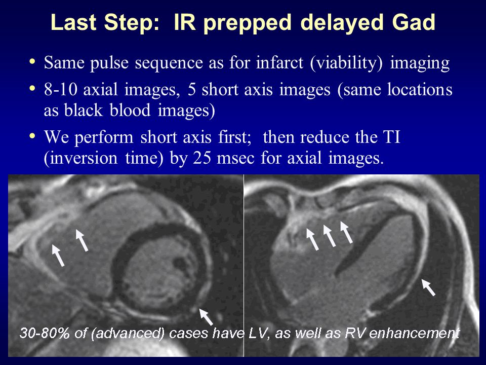Last Step: IR prepped delayed Gad Same pulse sequence as for infarct (viability) imaging 8-10 axial images, 5 short axis images (same locations as black blood images) We perform short axis first; then reduce the TI (inversion time) by 25 msec for axial images.