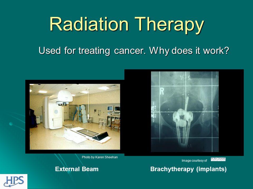 Bone Scans Image courtesy of