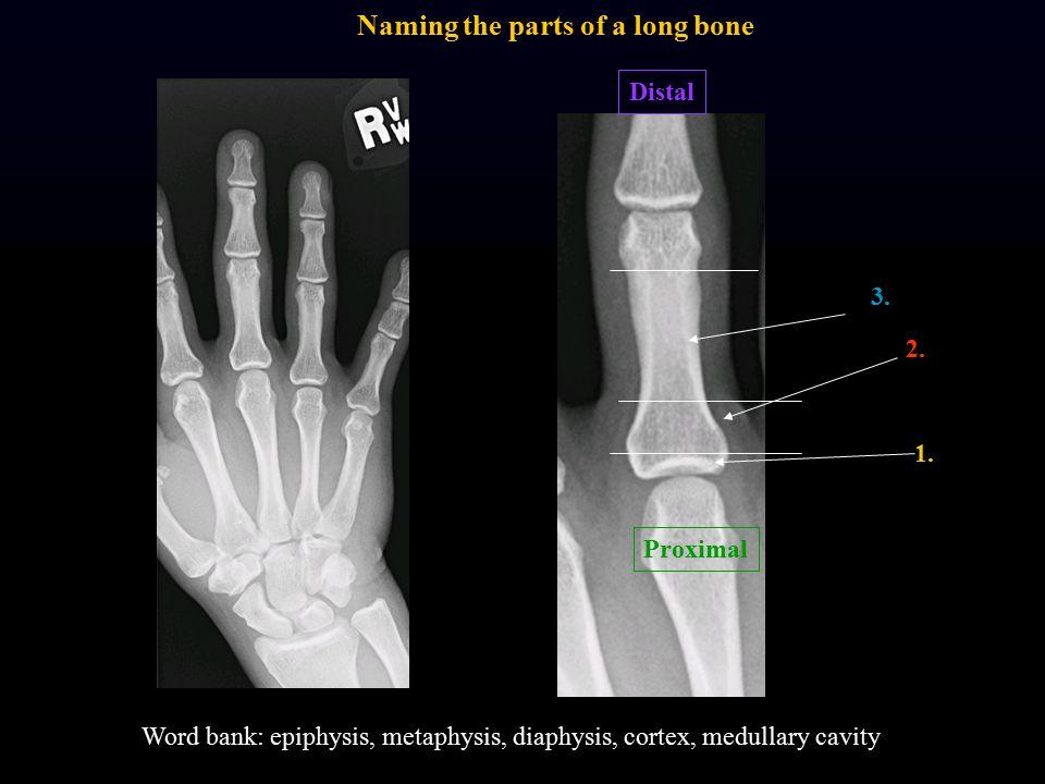 Proximal Distal 1. 2. 3. Word bank: epiphysis, metaphysis, diaphysis, cortex, medullary cavity Naming the parts of a long bone