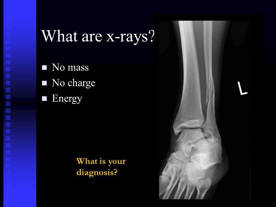 Summary questions What 3 things when an x-ray encounters the body.