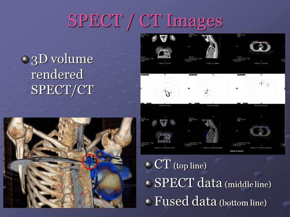 SPECT / CT Images CT (top line) SPECT data (middle line) Fused data (bottom line) 3D volume rendered SPECT/CT