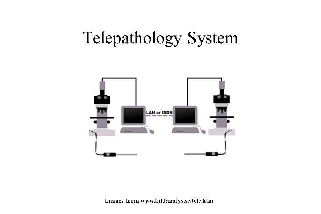 Telepathology System Images from www.bildanalys.se/tele.htm