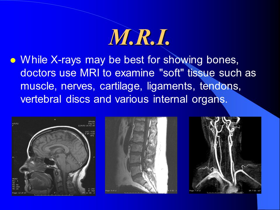 M.R.I. l While X-rays may be best for showing bones, doctors use MRI to examine