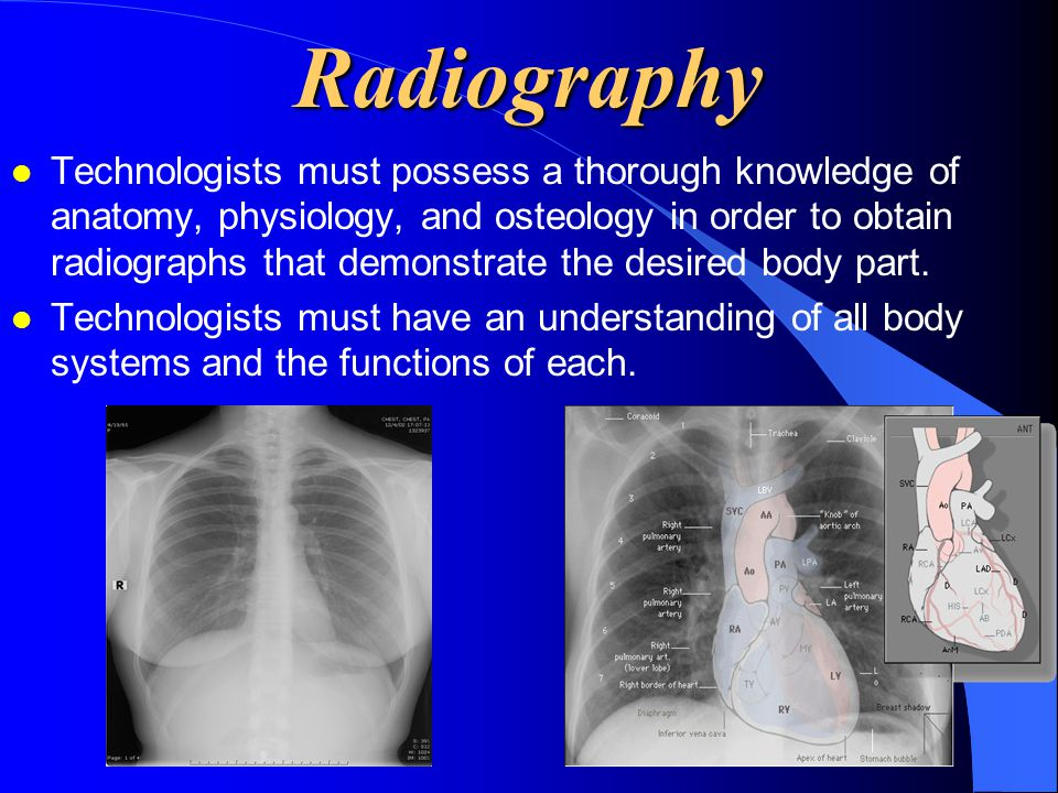 Radiography l Technologists must possess a thorough knowledge of anatomy, physiology, and osteology in order to obtain radiographs that demonstrate th