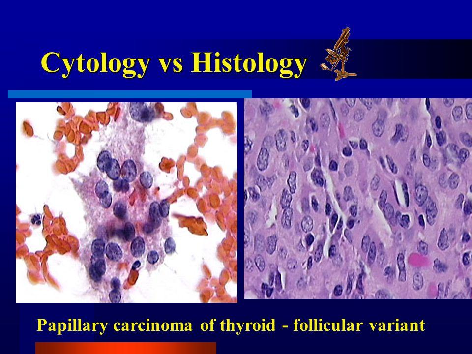 Cytology vs Histology Papillary carcinoma of thyroid - follicular variant