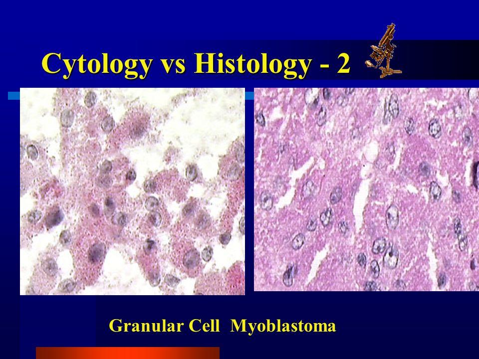 Cytology vs Histology - 2 Granular Cell Myoblastoma
