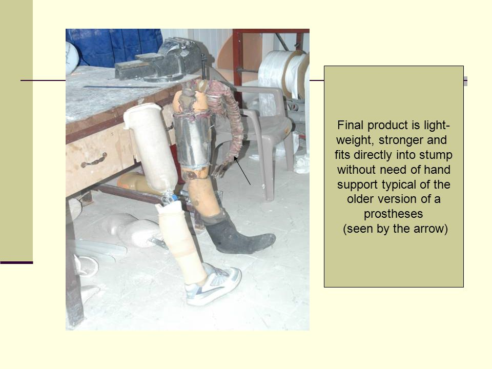 Final product is light- weight, stronger and fits directly into stump without need of hand support typical of the older version of a prostheses (seen
