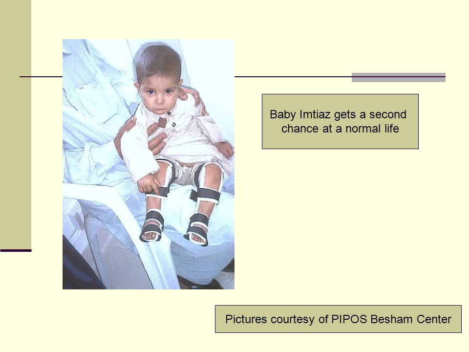 Baby Imtiaz gets a second chance at a normal life Pictures courtesy of PIPOS Besham Center
