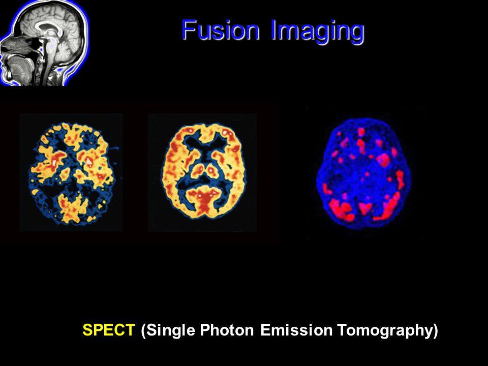 Fusion Imaging SPECT (Single Photon Emission Tomography)