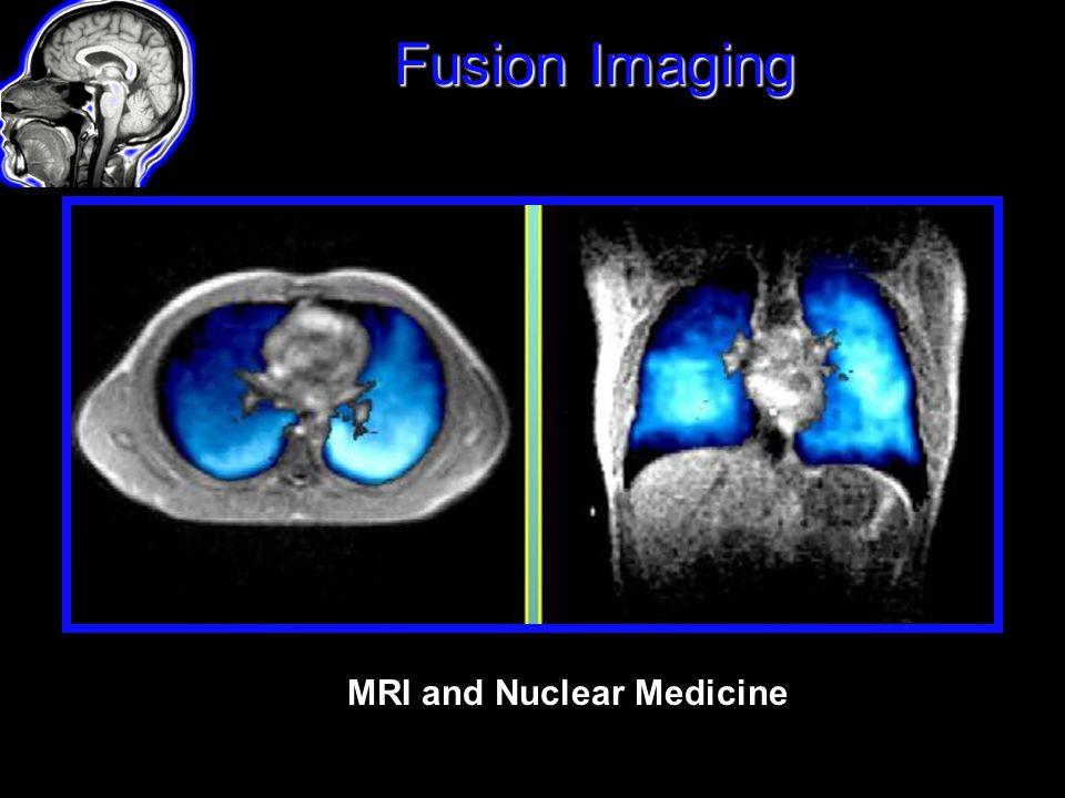 Fusion Imaging MRI and Nuclear Medicine