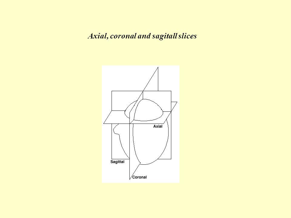 Axial, coronal and sagitall slices