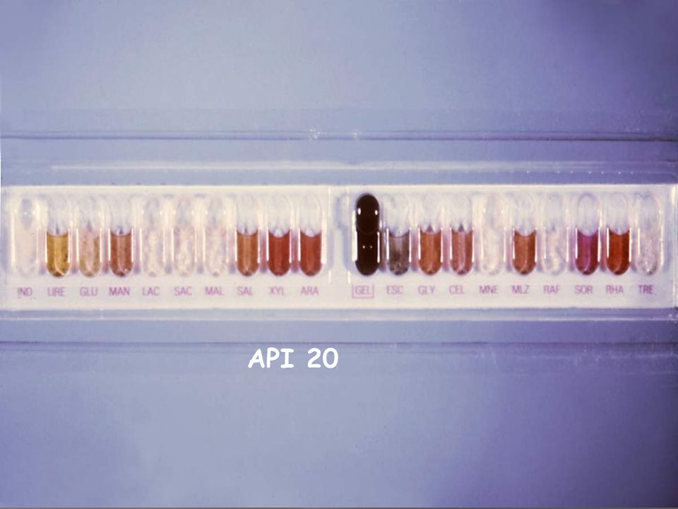 PROCEDURE 5-With asterile disposable pipette fill both the tube and cupule of the test CIT, VP and GGL with the bacterial suspension.