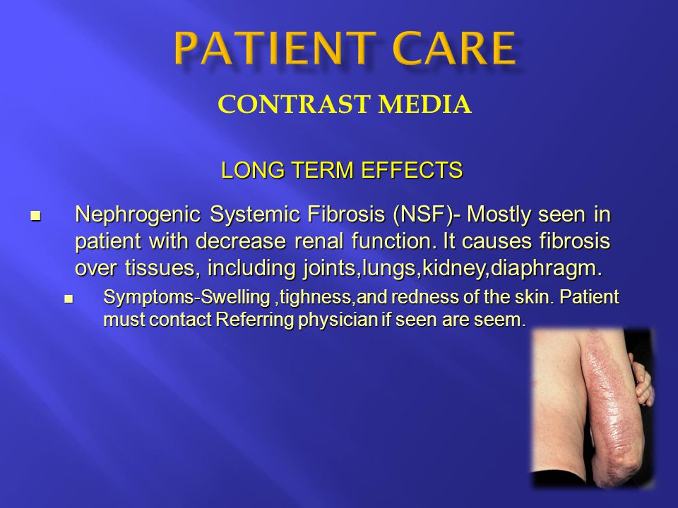 CONTRAST MEDIA LONG TERM EFFECTS Nephrogenic Systemic Fibrosis (NSF)- Mostly seen in patient with decrease renal function.