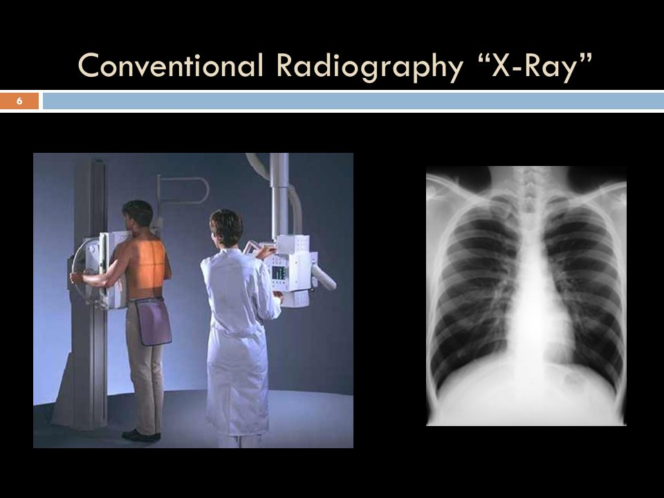 Conventional Radiography X-Ray 6