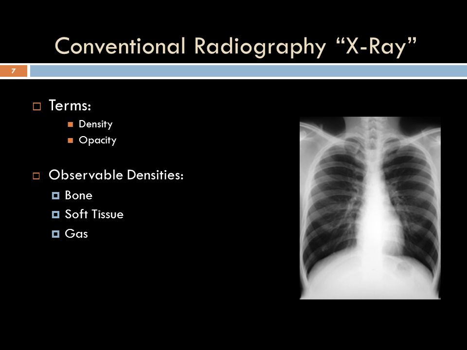"Conventional Radiography ""X-Ray"" 6"