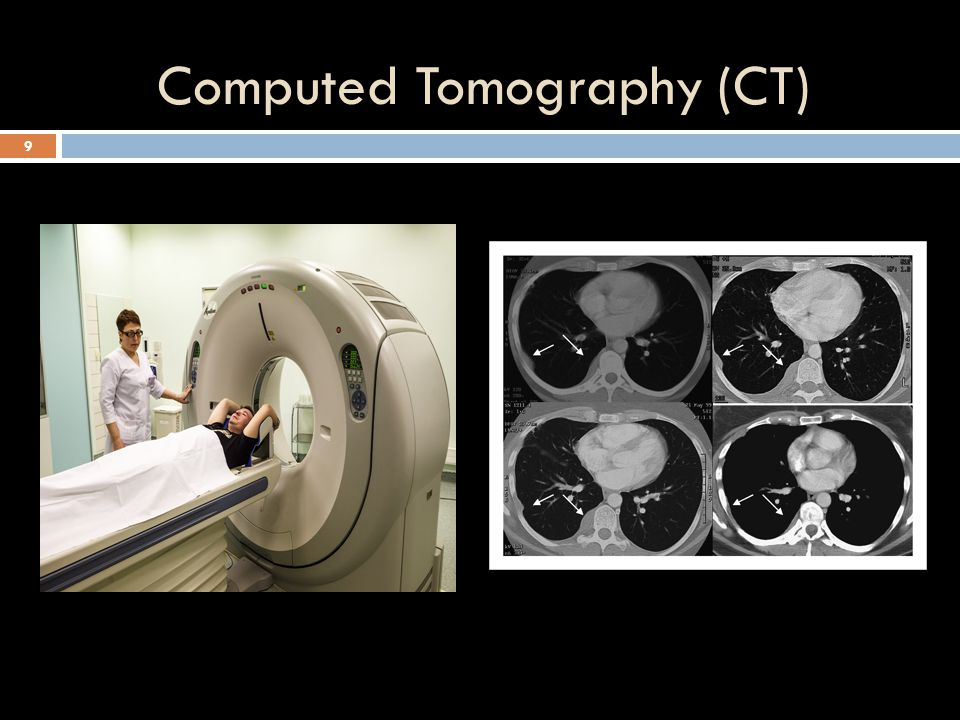 Computed Tomography (CT) 9