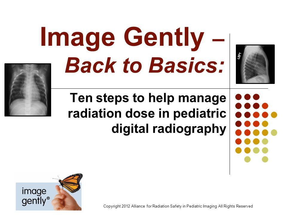 Image Gently – Back to Basics: Ten steps to help manage radiation dose in pediatric digital radiography Copyright 2012 Alliance for Radiation Safety i