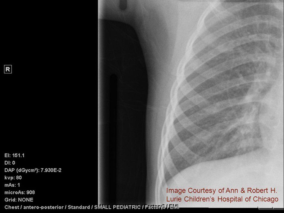 Image Courtesy of Ann & Robert H. Lurie Children's Hospital of Chicago
