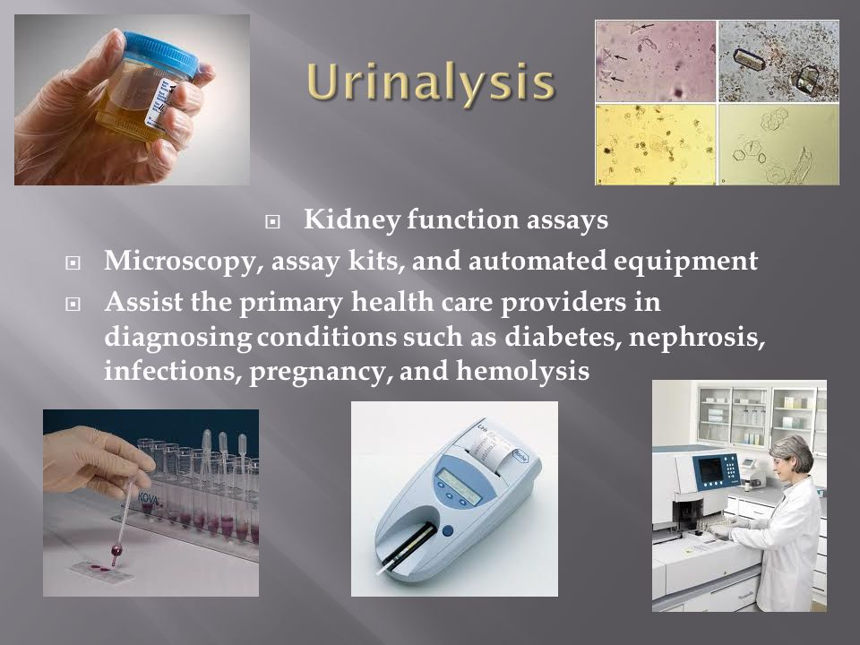  Kidney function assays  Microscopy, assay kits, and automated equipment  Assist the primary health care providers in diagnosing conditions such as diabetes, nephrosis, infections, pregnancy, and hemolysis
