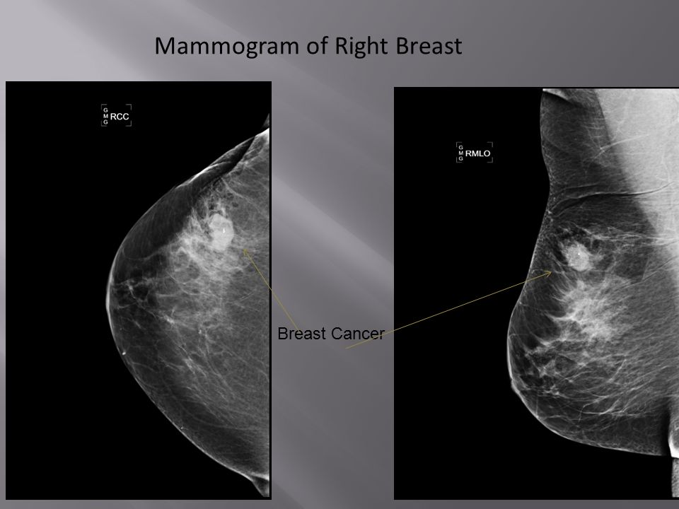 Breast Cancer Mammogram of Right Breast