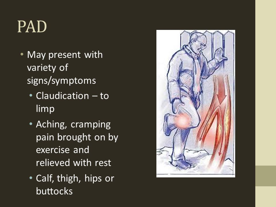 PAD May present with variety of signs/symptoms Claudication – to limp Aching, cramping pain brought on by exercise and relieved with rest Calf, thigh,