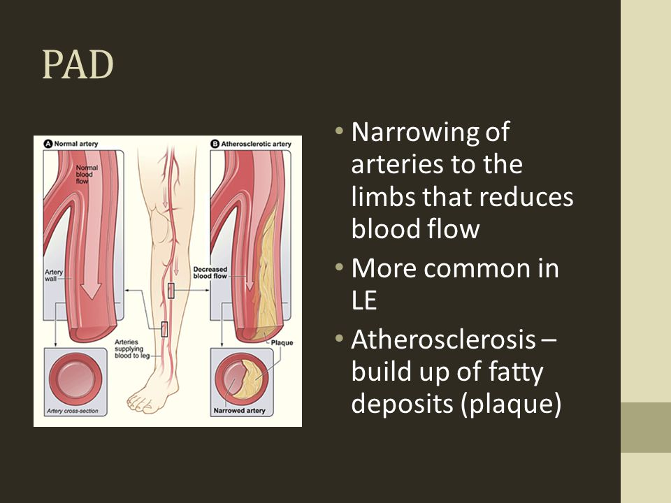 PAD Narrowing of arteries to the limbs that reduces blood flow More common in LE Atherosclerosis – build up of fatty deposits (plaque)