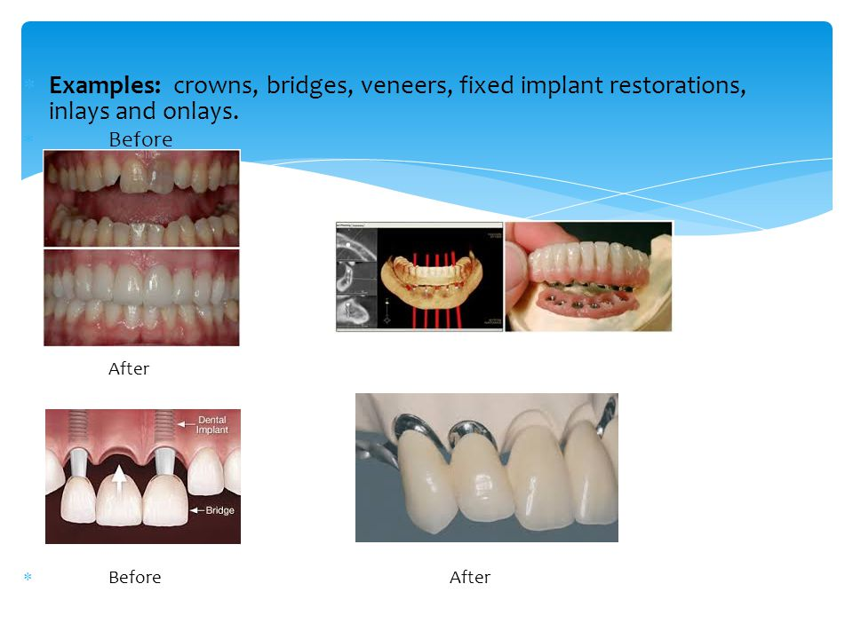  Examples: crowns, bridges, veneers, fixed implant restorations, inlays and onlays.