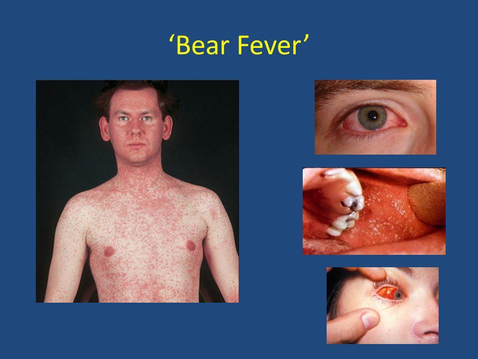 'Bear Fever'