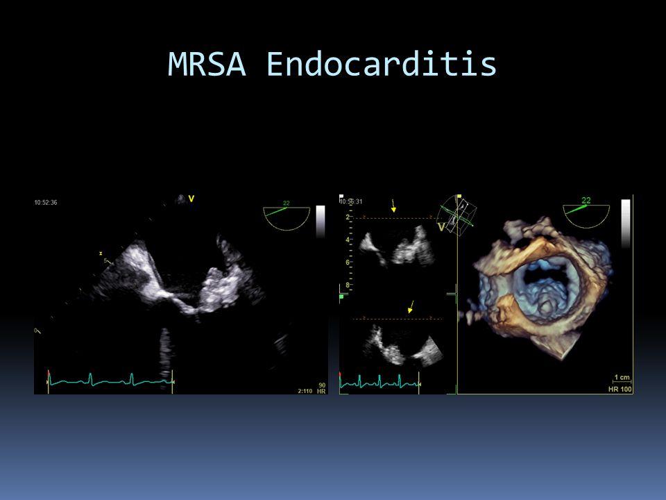 MRSA Endocarditis