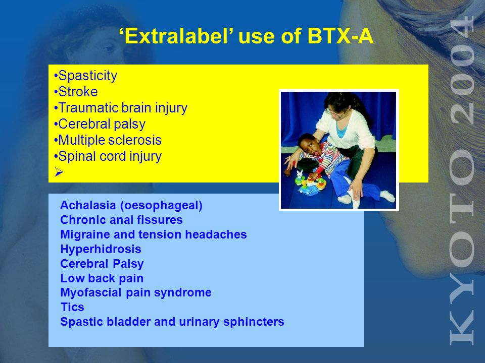 FDA approved uses of BTX-A 1. Cervical dystonia 2.