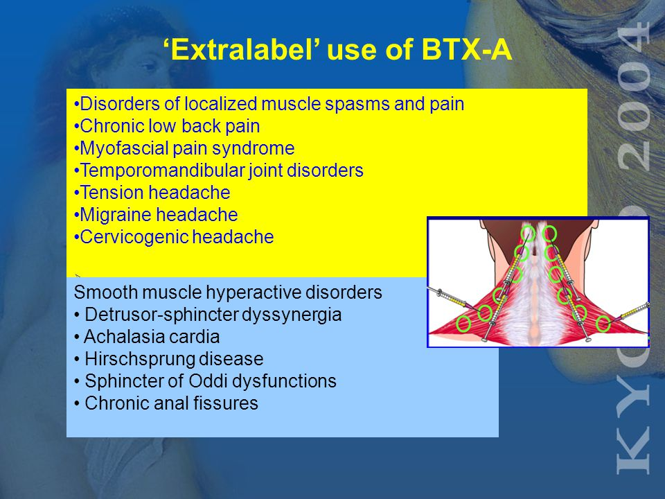 'Extralabel' use of BTX-A Focal dystonias - Involuntary, sustained, or spasmodic patterned muscle activity Cervical dystonia (spasmodic torticollis) Blepharospasm (eyelid closure) Laryngeal dystonia (spasmodic dysphonia) Limb dystonia (writer s cramp) Oromandibular dystonia Orolingual dystonia Truncal dystonia  Sweating disorders Axillary and palmar hyperhidrosis Frey syndrome, also known as auriculotemporal syndrome