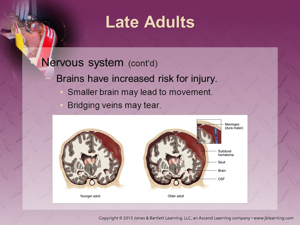 Late Adults Nervous system (cont'd) −Brains have increased risk for injury. Smaller brain may lead to movement. Bridging veins may tear.