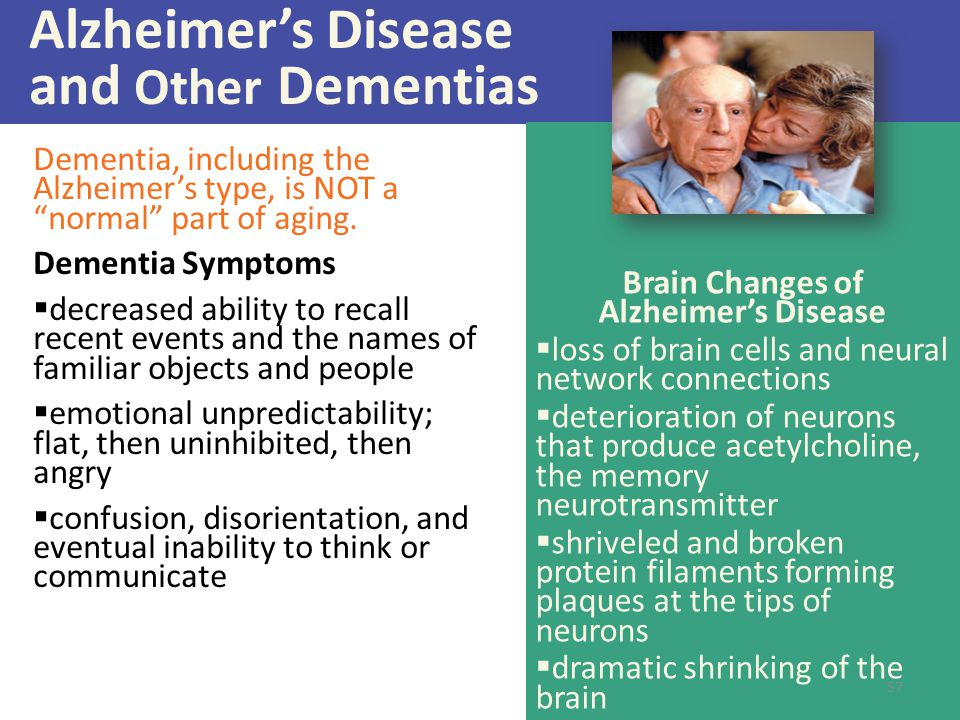 """Alzheimer's Disease and Other Dementias Dementia, including the Alzheimer's type, is NOT a """"normal"""" part of aging. Dementia Symptoms  decreased abili"""