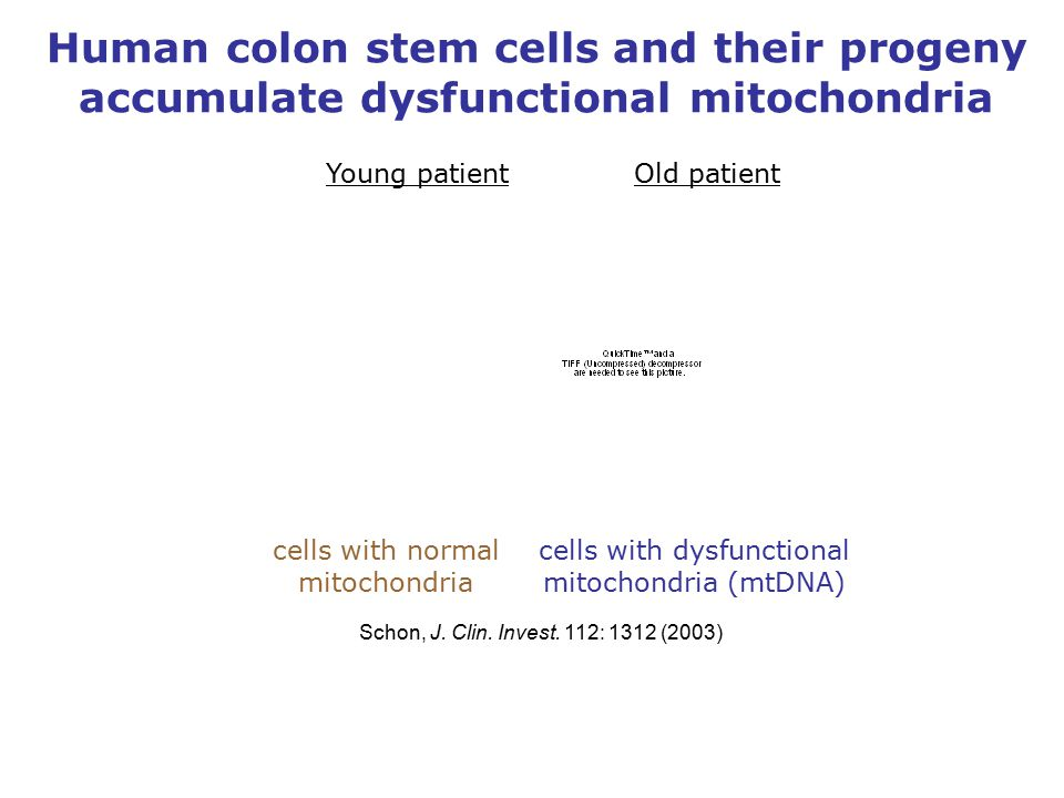Human colon stem cells and their progeny accumulate dysfunctional mitochondria cells with normal mitochondria cells with dysfunctional mitochondria (mtDNA) Schon, J.
