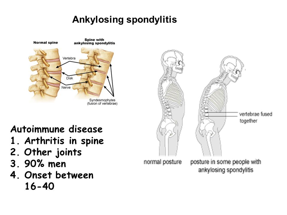 Ankylosing spondylitis Autoimmune disease 1. Arthritis in spine 2. Other joints 3.90% men 4.Onset between 16-40