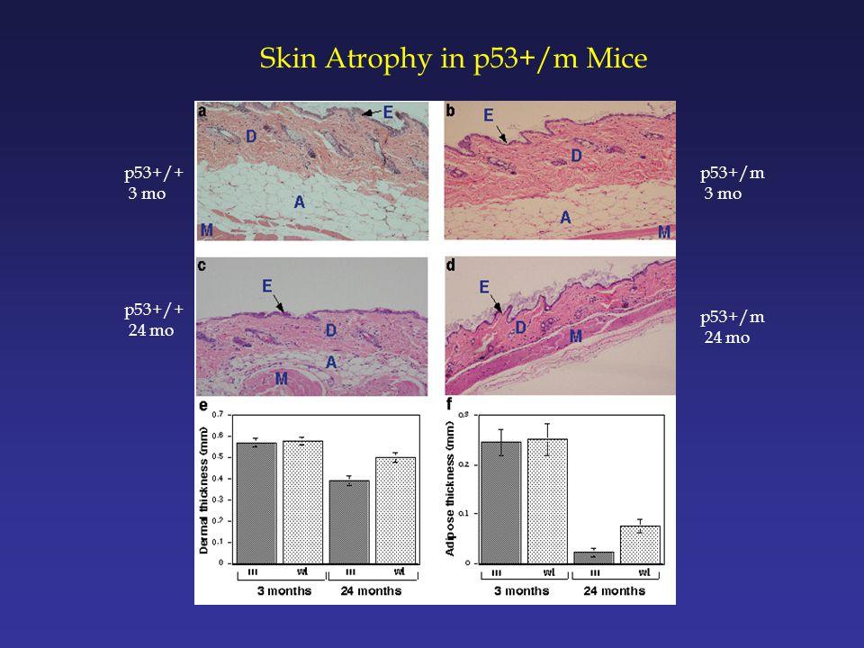 Skin Atrophy in p53+/m Mice p53+/+ 3 mo p53+/m 3 mo p53+/+ 24 mo p53+/m 24 mo