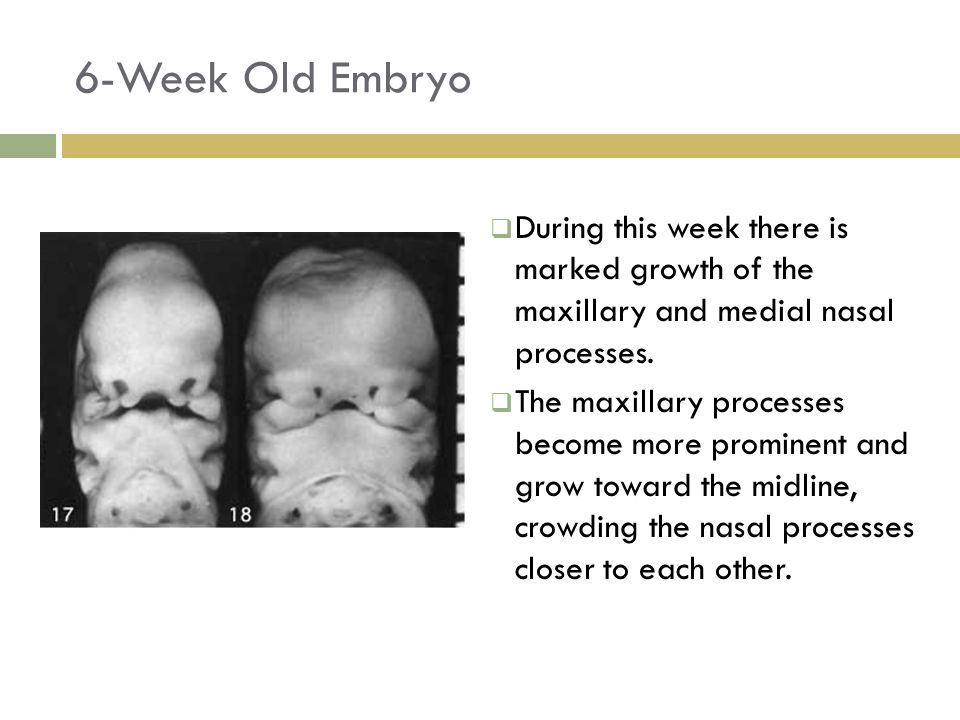 6-Week Old Embryo  During this week there is marked growth of the maxillary and medial nasal processes.