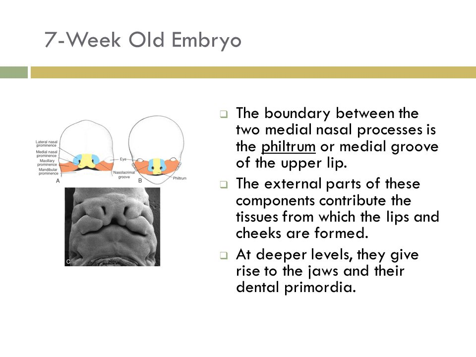 7-Week Old Embryo  The boundary between the two medial nasal processes is the philtrum or medial groove of the upper lip.