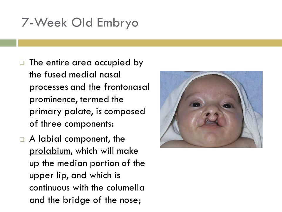 7-Week Old Embryo  The entire area occupied by the fused medial nasal processes and the frontonasal prominence, termed the primary palate, is compose