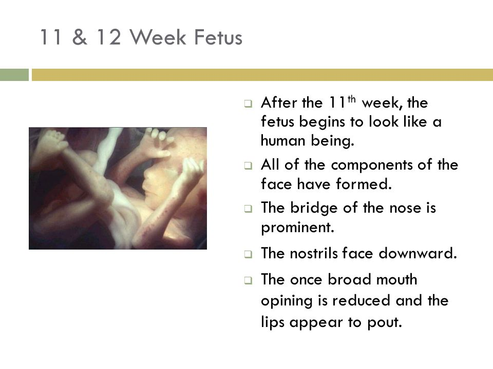 11 & 12 Week Fetus  After the 11 th week, the fetus begins to look like a human being.  All of the components of the face have formed.  The bridge