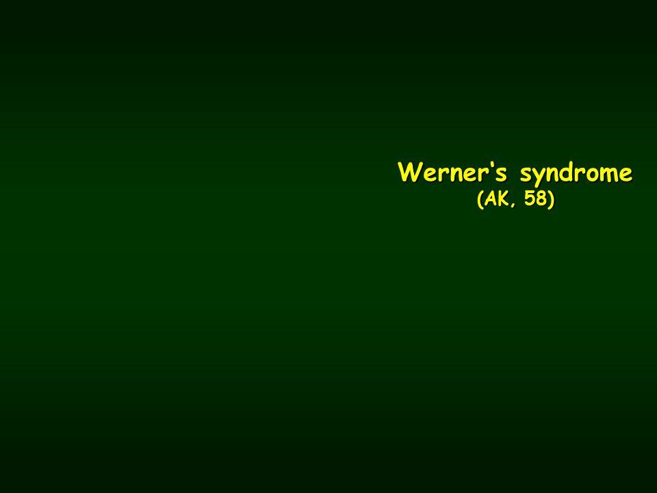 Werner's syndrome (AK, 58)
