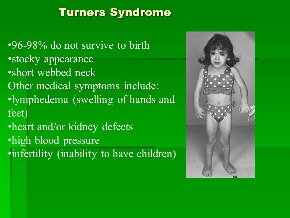 Turners Syndrome 96-98% do not survive to birth stocky appearance short webbed neck Other medical symptoms include: lymphedema (swelling of hands and