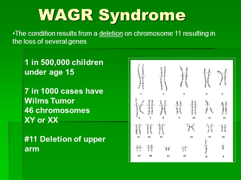 WAGR Syndrome 1 in 500,000 children under age 15 7 in 1000 cases have Wilms Tumor 46 chromosomes XY or XX #11 Deletion of upper arm The condition resu