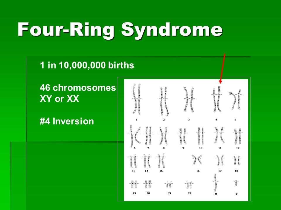 Four-Ring Syndrome 1 in 10,000,000 births 46 chromosomes XY or XX #4 Inversion