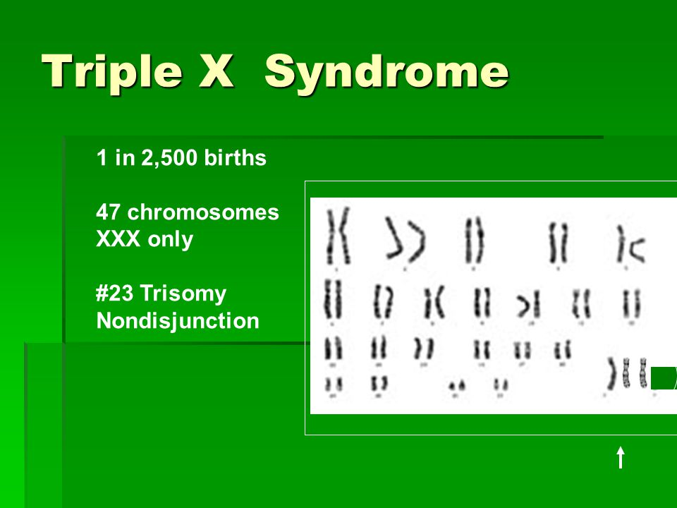 Triple X Syndrome 1 in 2,500 births 47 chromosomes XXX only #23 Trisomy Nondisjunction