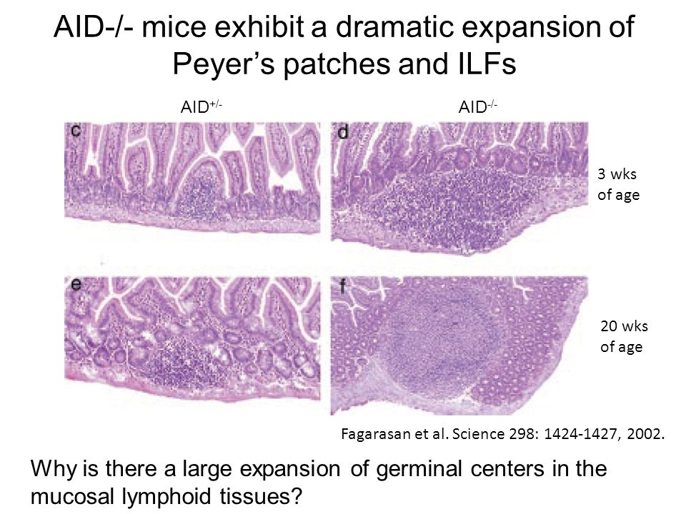 AID-/- mice exhibit a dramatic expansion of Peyer's patches and ILFs AID +/- AID -/- 3 wks of age 20 wks of age Fagarasan et al. Science 298: 1424-142