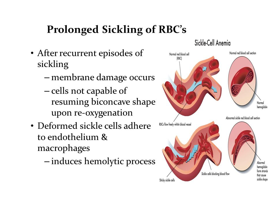 Prolonged Sickling of RBC's After recurrent episodes of sickling – membrane damage occurs – cells not capable of resuming biconcave shape upon re-oxygenation Deformed sickle cells adhere to endothelium & macrophages – induces hemolytic process