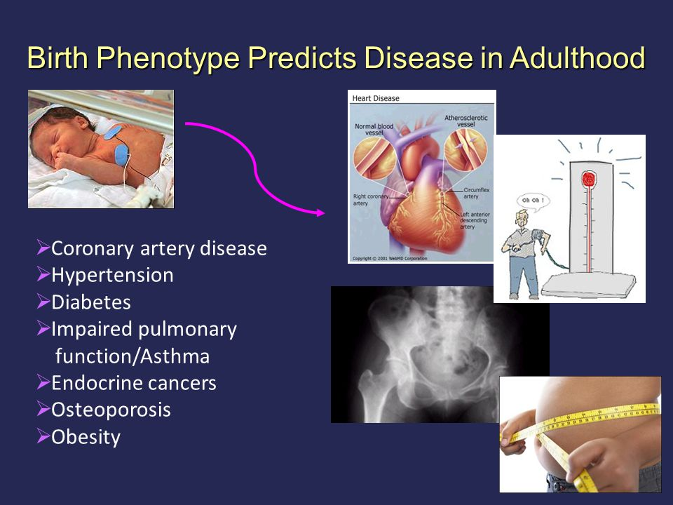 Birth Phenotype Predicts Disease in Adulthood  Coronary artery disease  Hypertension  Diabetes  Impaired pulmonary function/Asthma  Endocrine cancers  Osteoporosis  Obesity