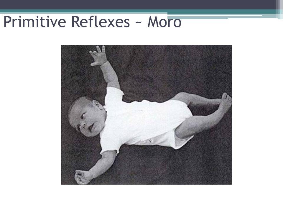 Primitive Reflexes ~ Moro