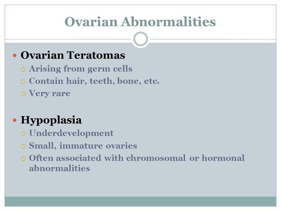 Ovarian Abnormalities Ovarian Teratomas  Arising from germ cells  Contain hair, teeth, bone, etc.
